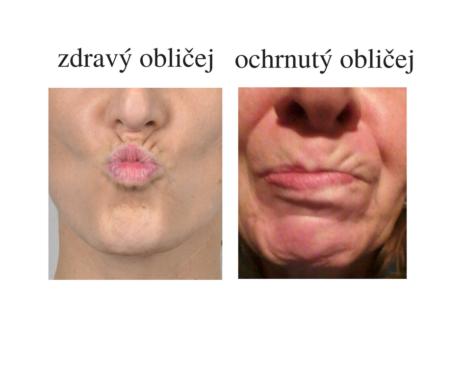 ochrnutý obličej